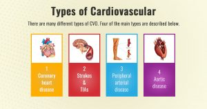Cardiovascular disease – types, causes and prevention